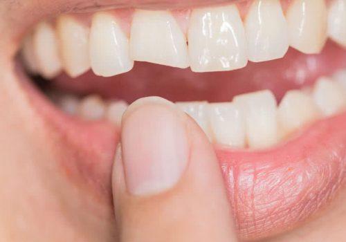 dental-composite-bonding