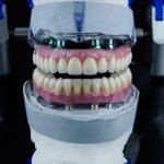 3-on-6-dental-implants-in-turkey