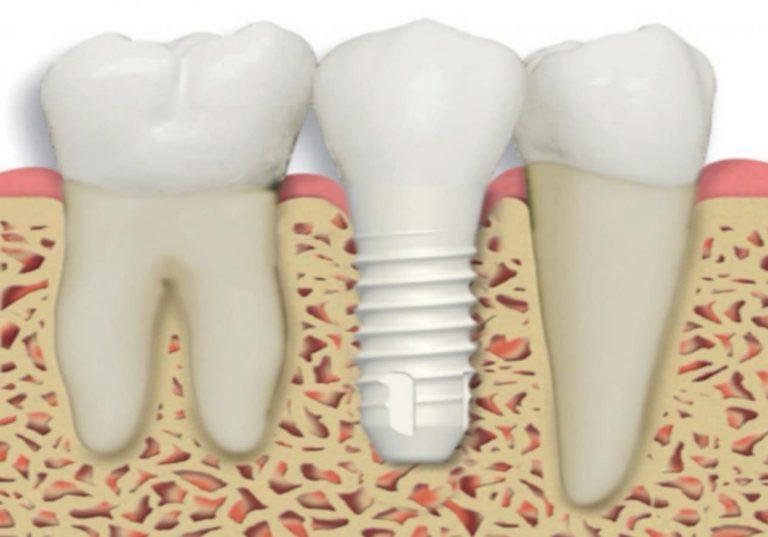 zirconium-implant-treatment