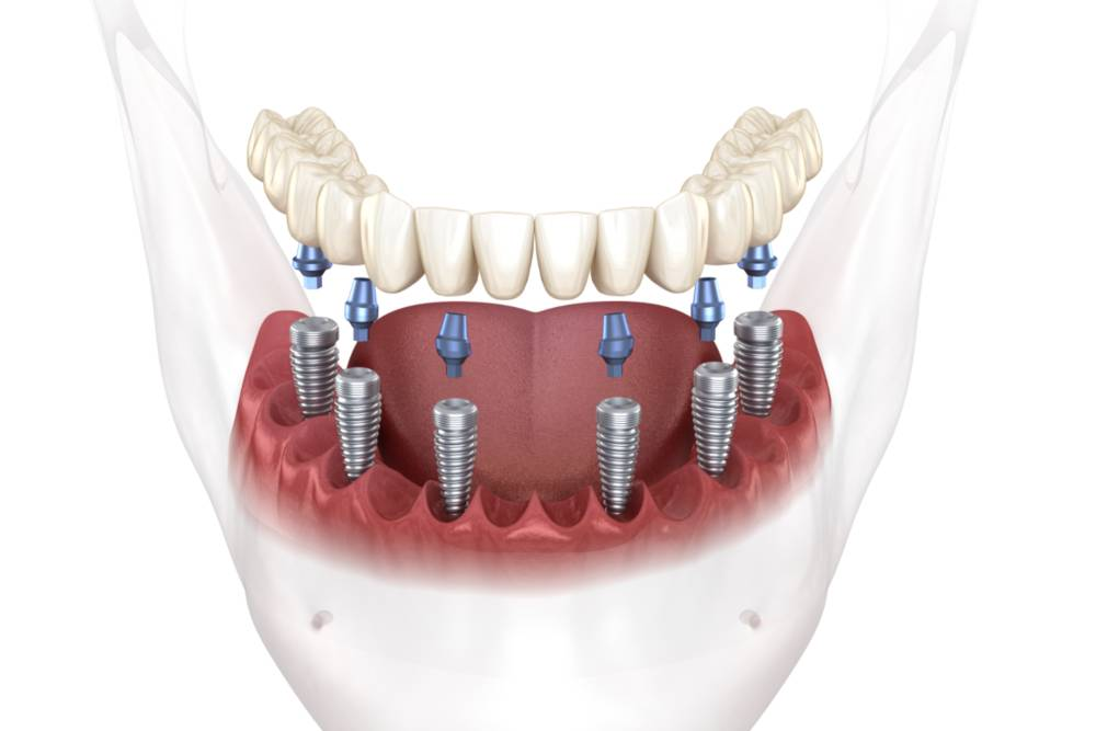 All-on-Six Dental Implants in Turkey: Price, Treatment Abroad