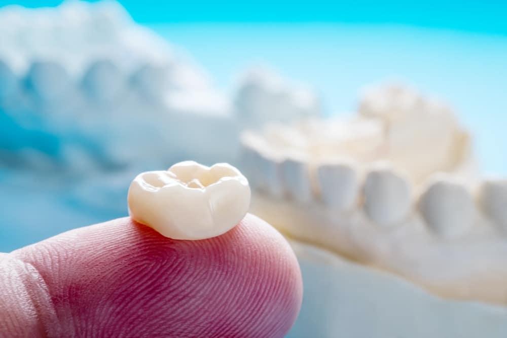 closeup-prosthodontics-prosthetic-single