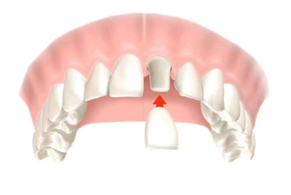 dental-crowns-in-turkey