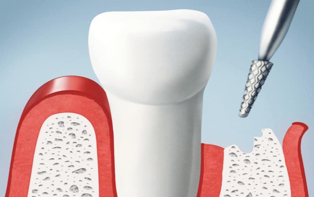 gum-graft-surgery