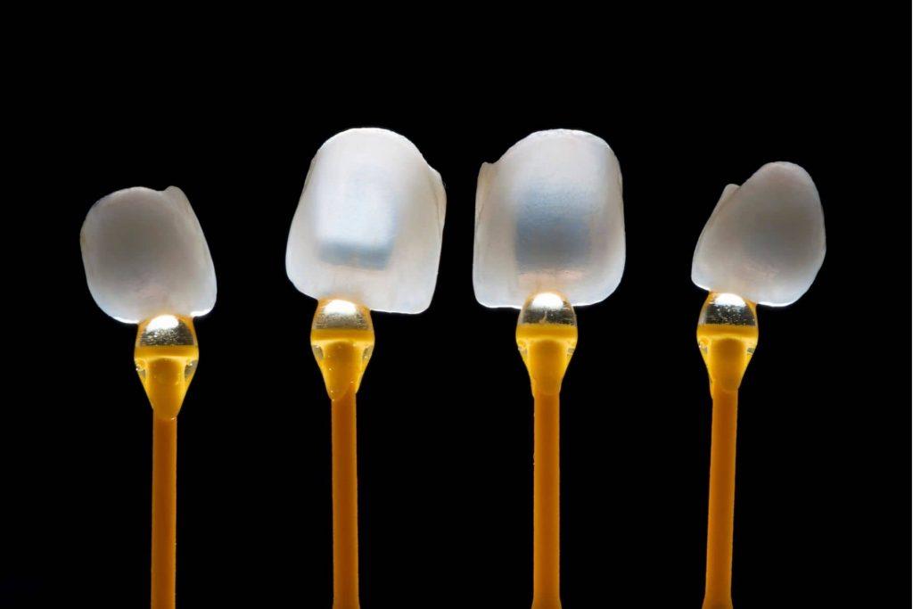 veneers dental laminate