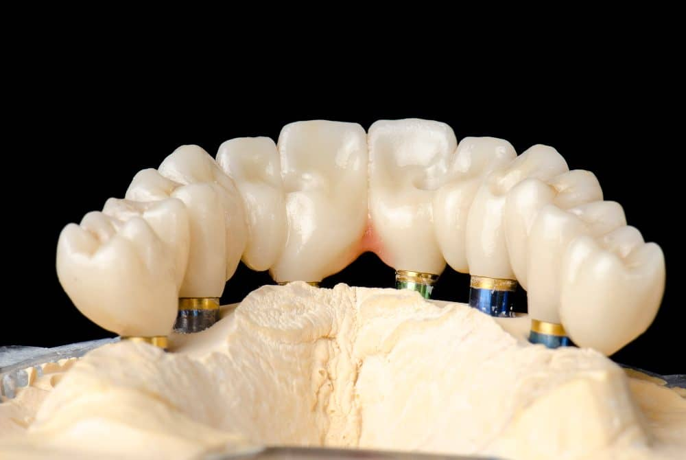 All-on-Six Dental Implants in Turkey