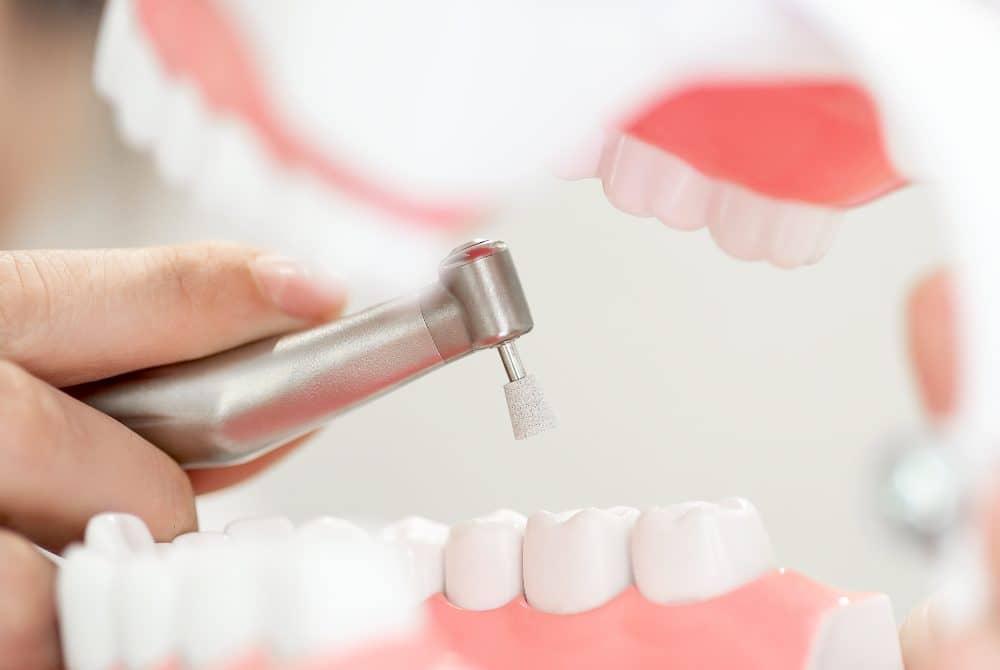 Dental Teeth Deep Cleaning