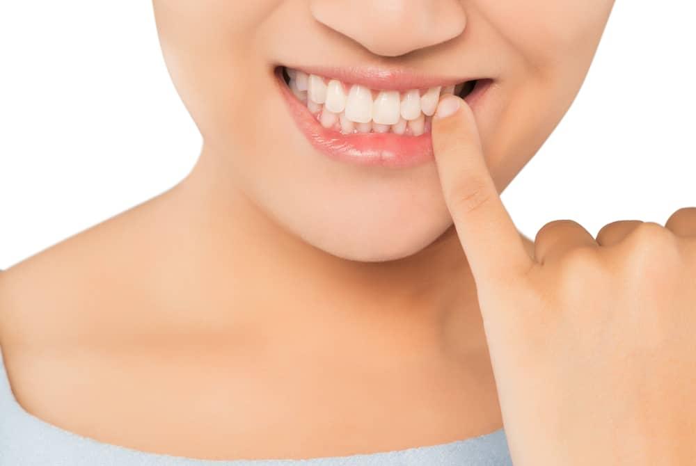 Gum Graft Surgery in Turkey