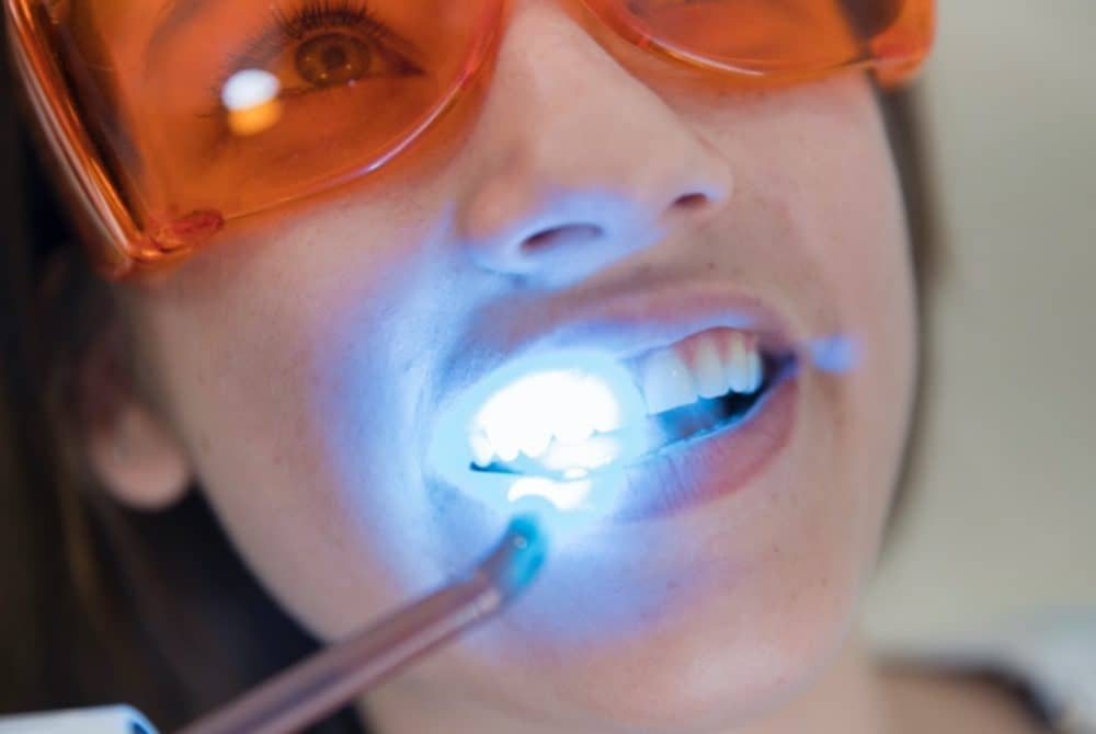 Laser Teeth Whitening in Turkey