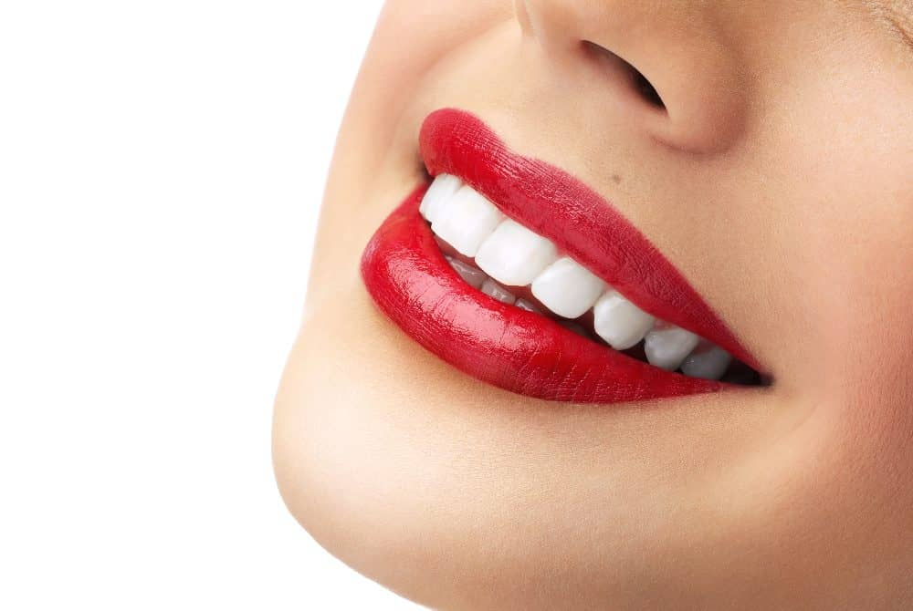 Smile makeover in Turkey
