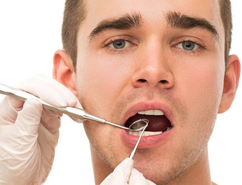 Tooth Fillings in Turkey: Cost, Procedure & Treatment Abroad