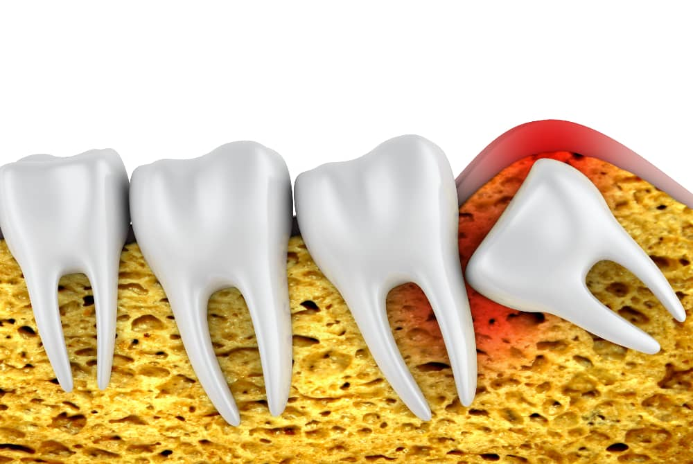 Wisdom Tooth Extraction in Turkey