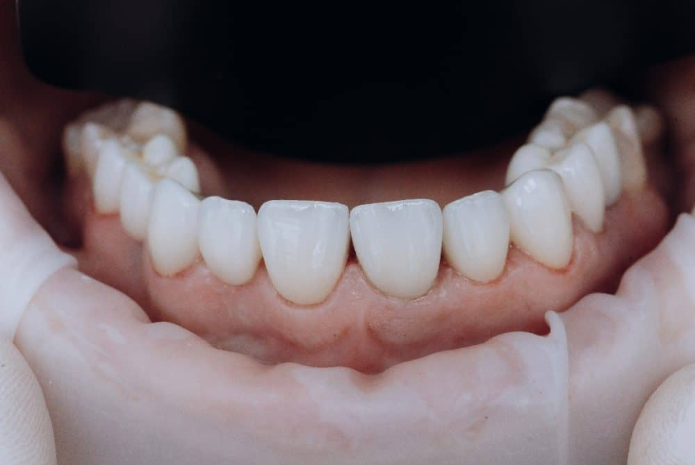 Zirconium Crowns in Turkey