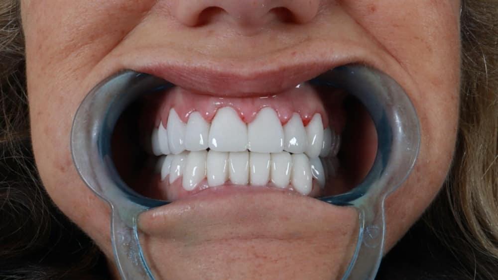 dental Veneers & Crowns.