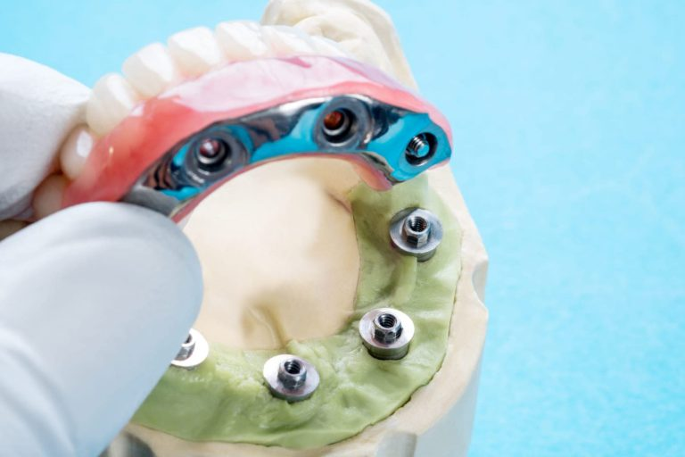 all-on-4-dental-implants-in-turkey