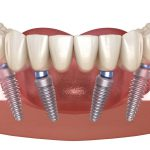 all-on-6-dental-implants