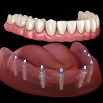 all-on-8-dental-implants