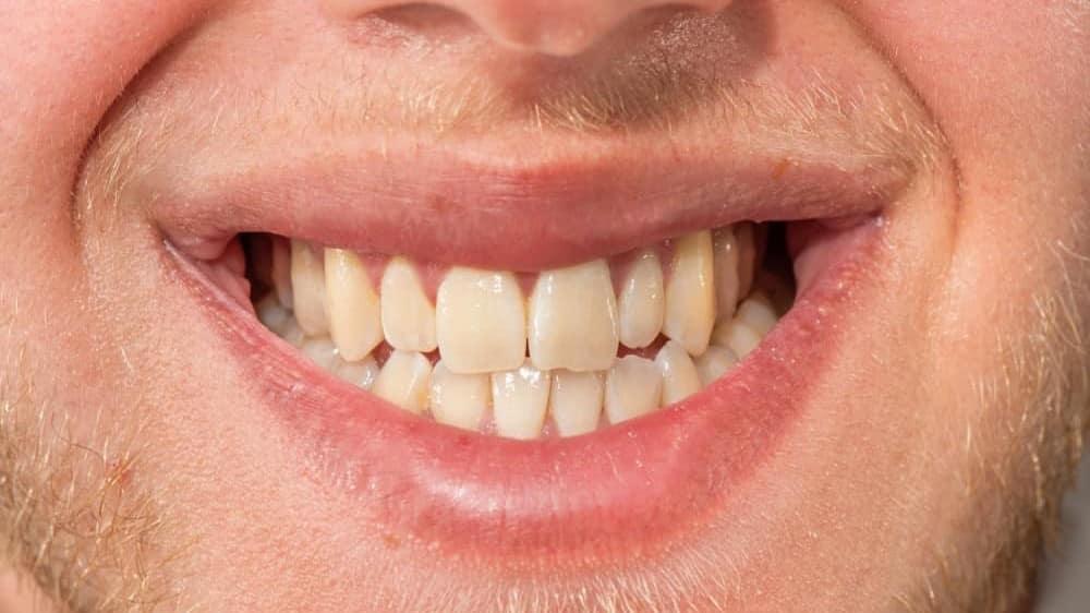Teeth Whitening in Turkey