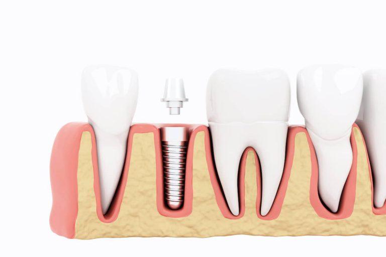 immediate-implant-treatment