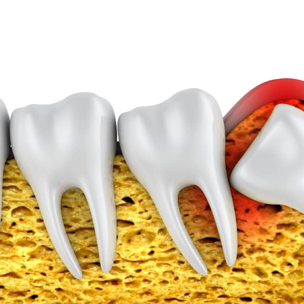 wisdom-tooth-extraction-in-turkey