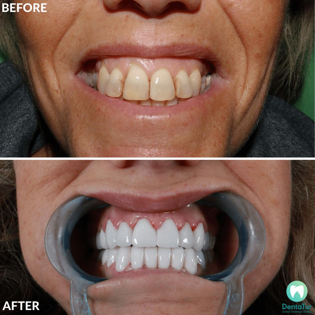 Dental Veneers & Crowns