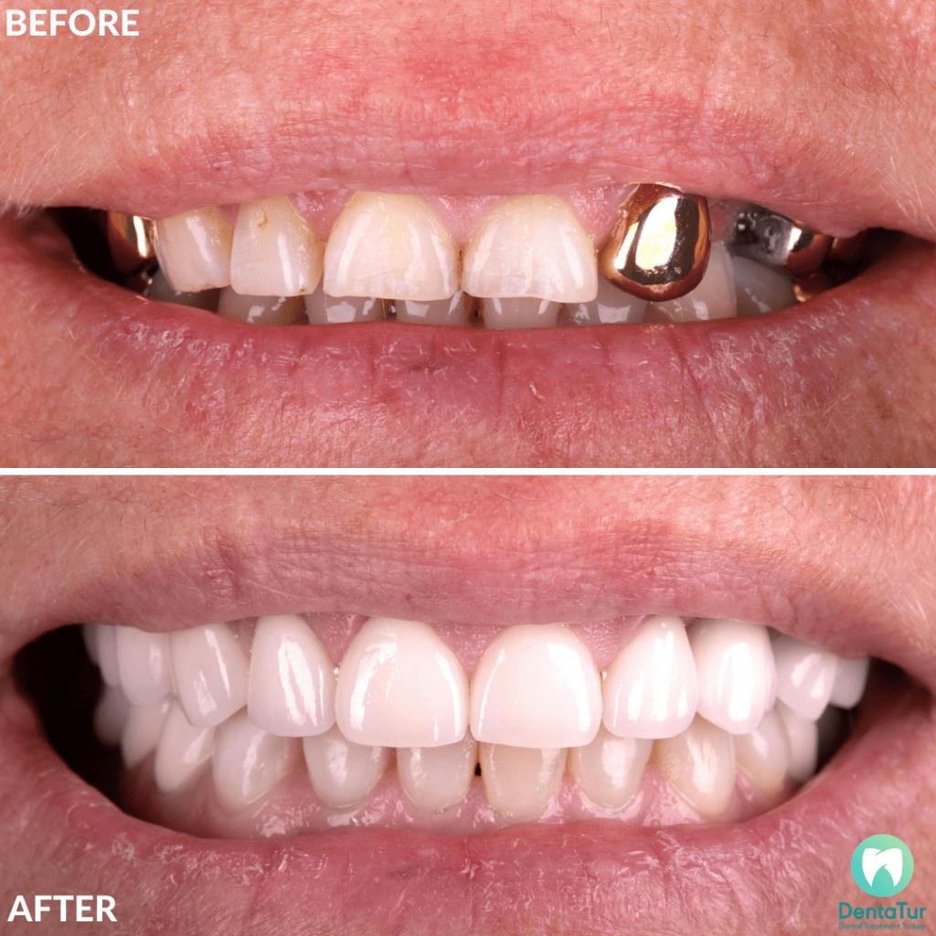 Dental Implants Treatment Abroad